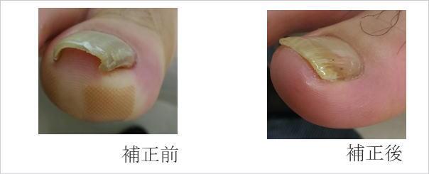 巻き爪補正症例画像